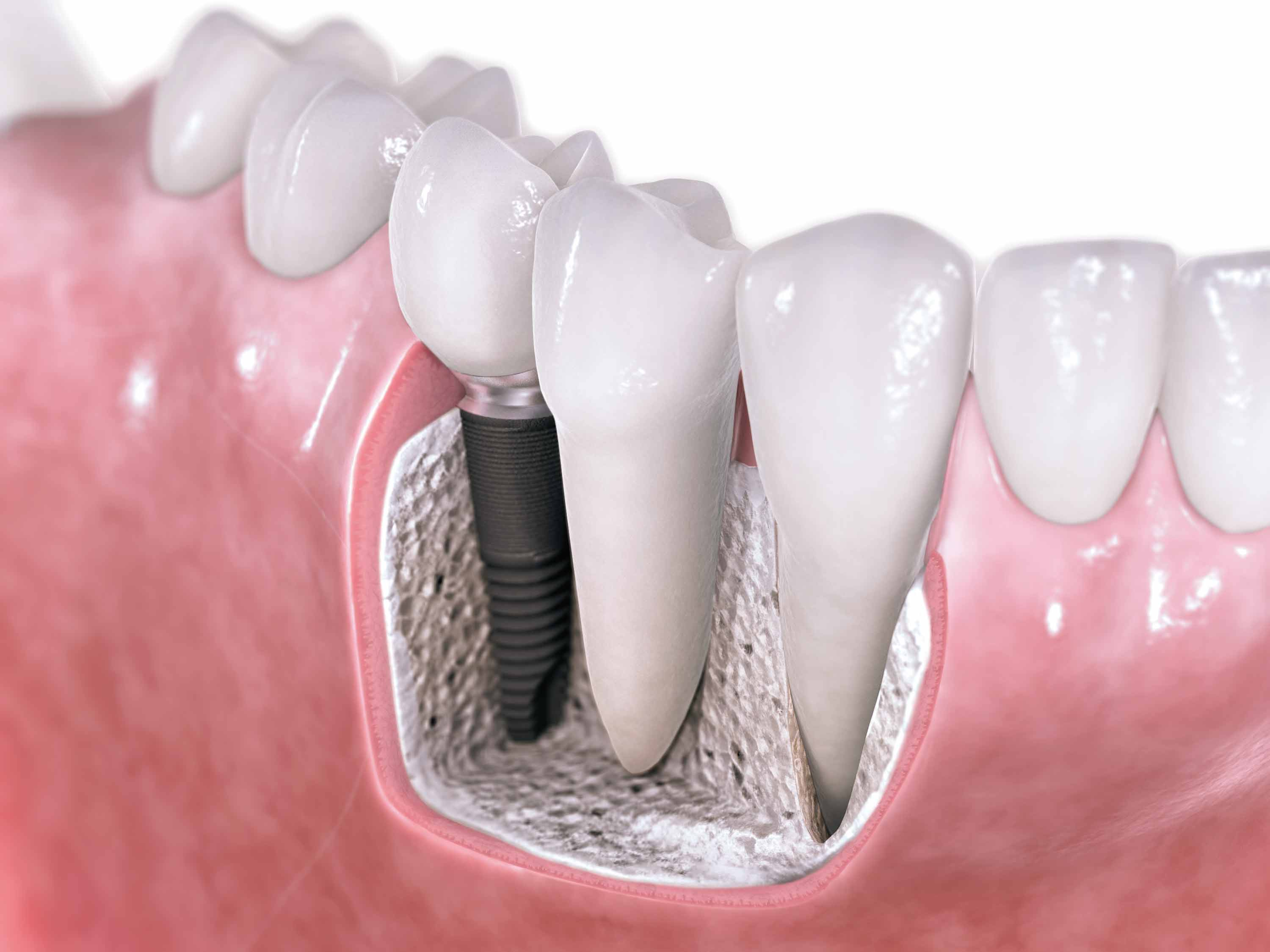 Hex-Dental-Implantat.jpg