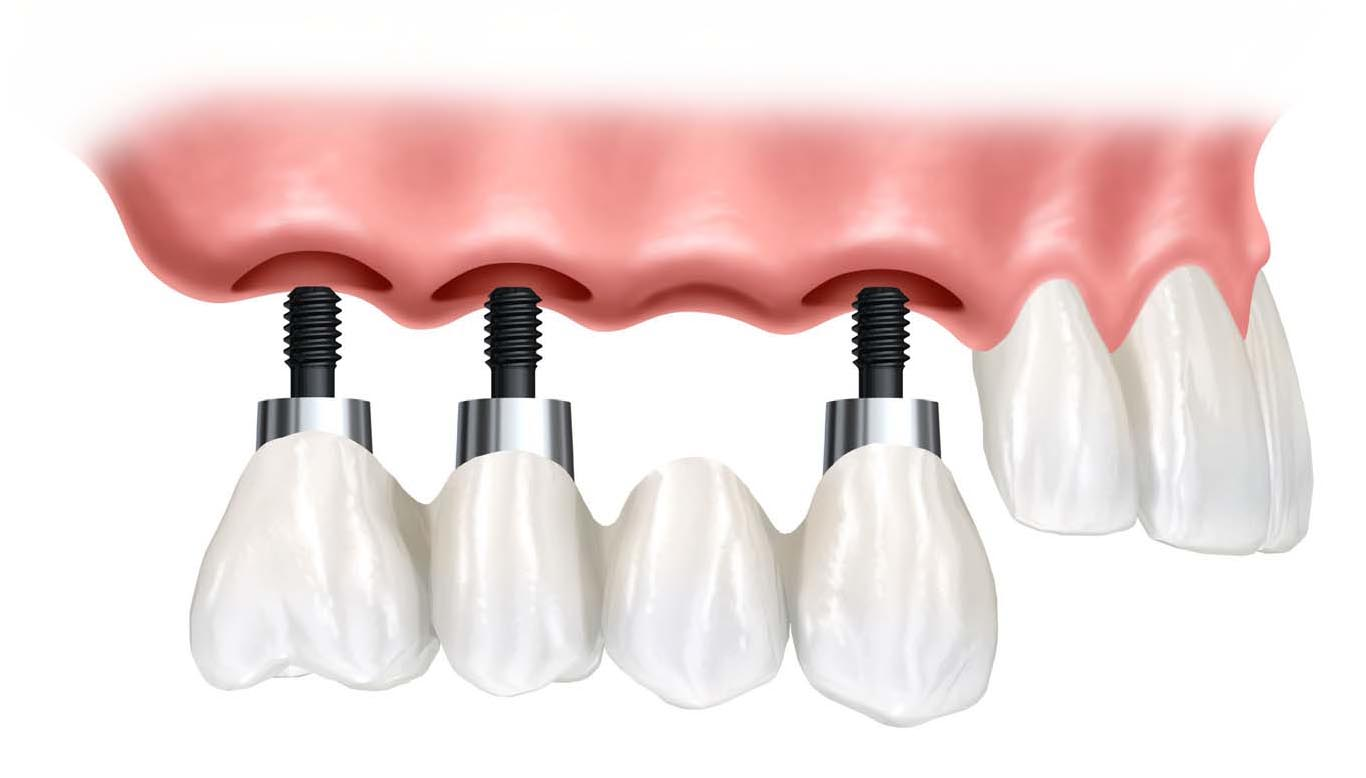 implant-supported-over-denture.jpg